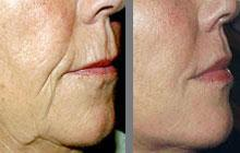 MESOLIFTING FACIAL